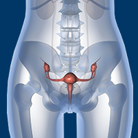 Adjuvant Therapy Does Not Improve Survival for Early Stage Uterine Leiomyosarcoma