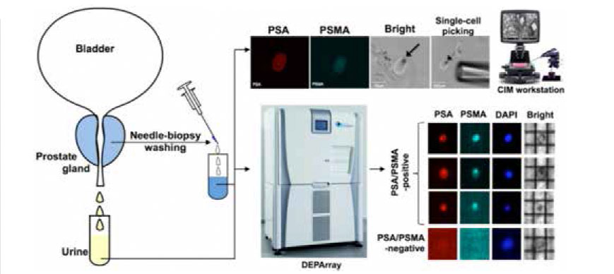 Figure 1. Single-cell isolation and characterization using CIM and DEPArray systems, respectively. Individual PSA/PSMA-positiveprostate epithelial cells have been isolated from urine or needle biopsy washes for downstream analysis using BioMark or AFM.The same approaches will be used to isolate epithelial cancer cells and the associated stromal fibroblasts from endocervicalbrushes and to isolate circulating rare cells from blood samples of cancer patients.
