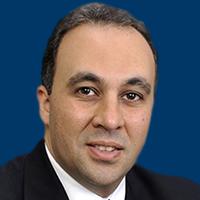 Narsoplimab Emerging as Treatment Option for TA-TMA
