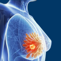 De-escalated, Chemo-Free Neoadjuvant Path Viable in HER2+/HR+ Breast Cancer