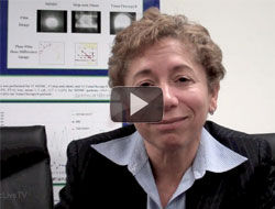 Dr. Perez on the Mayo Clinic Breast Cancer Genomic Study